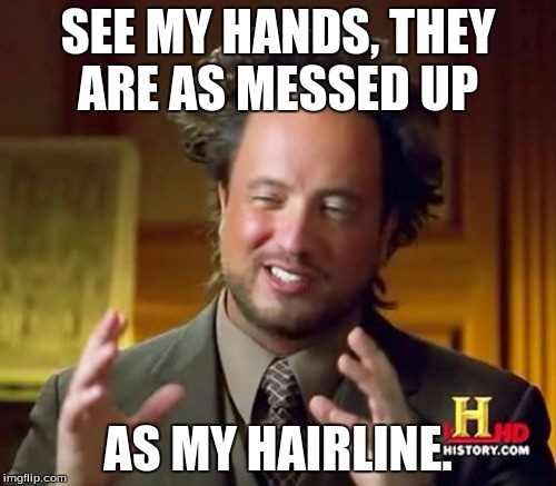 Ancient Aliens Meme |  SEE MY HANDS, THEY ARE AS MESSED UP; AS MY HAIRLINE. | image tagged in memes,ancient aliens | made w/ Imgflip meme maker