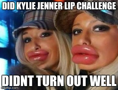 Duck Face Chicks Meme | DID KYLIE JENNER LIP CHALLENGE DIDNT TURN OUT WELL | image tagged in memes,duck face chicks | made w/ Imgflip meme maker