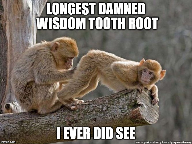 LONGEST DAMNED WISDOM TOOTH ROOT I EVER DID SEE | made w/ Imgflip meme maker