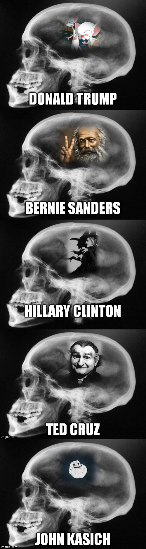Head X-rays of the Presidential Contenders | JOHN KASICH | image tagged in memes | made w/ Imgflip meme maker