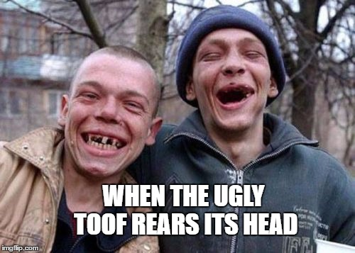 WHEN THE UGLY TOOF REARS ITS HEAD | made w/ Imgflip meme maker