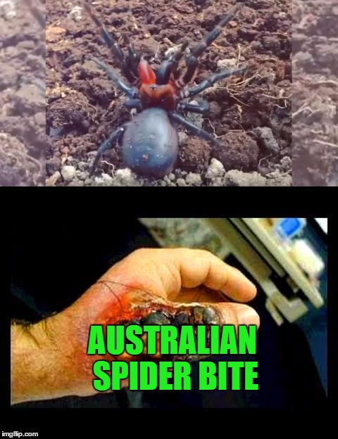 AUSTRALIAN SPIDER BITE | made w/ Imgflip meme maker