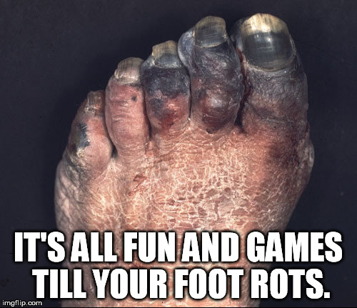 IT'S ALL FUN AND GAMES TILL YOUR FOOT ROTS. | made w/ Imgflip meme maker