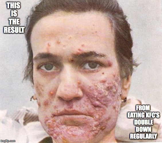 Acne |  THIS IS THE RESULT; FROM EATING KFC'S DOUBLE DOWN REGULARLY | image tagged in acne,kfc,double down,memes | made w/ Imgflip meme maker