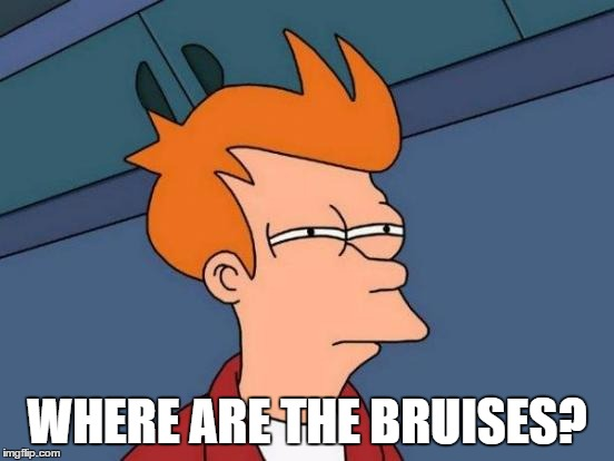 Futurama Fry Meme | WHERE ARE THE BRUISES? | image tagged in memes,futurama fry | made w/ Imgflip meme maker