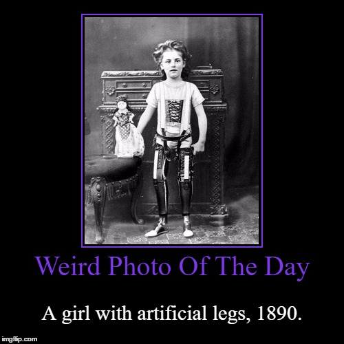 We Humans, Never Stop Dreaming | Weird Photo Of The Day | A girl with artificial legs, 1890. | image tagged in funny,demotivationals,weird,photo of the day,girl,artificial legs | made w/ Imgflip demotivational maker