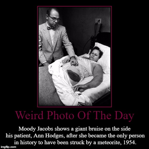 What Are The Odds? | Weird Photo Of The Day | Moody Jacobs shows a giant bruise on the side his patient, Ann Hodges, after she became the only person in history  | image tagged in funny,demotivationals,weird,photo of the day,meteorite,patient | made w/ Imgflip demotivational maker