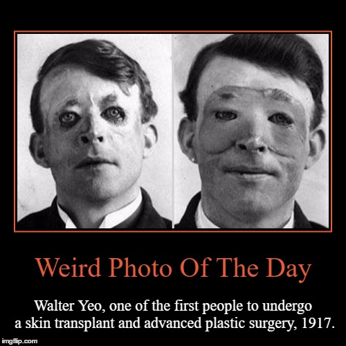 I Feel Bad For The Man... | Weird Photo Of The Day | Walter Yeo, one of the first people to undergo a skin transplant and advanced plastic surgery, 1917. | image tagged in funny,demotivationals,weird,photo of the day,walter yeo,plastic surgery | made w/ Imgflip demotivational maker