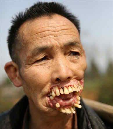 Dating a girl with messed up teeth