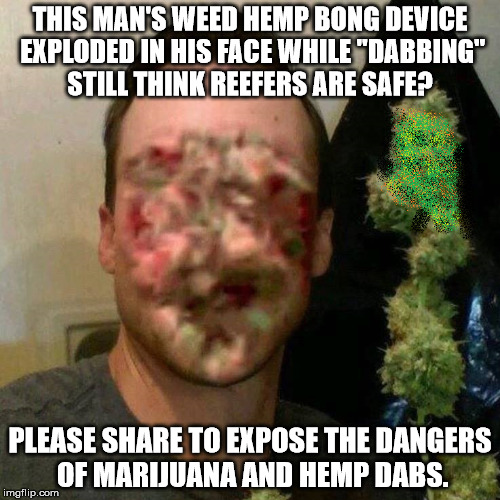 "THIS MAN'S WEED HEMP BONG DEVICE EXPLODED IN HIS FACE WHILE ""DABBING"" STILL THINK REEFERS ARE SAFE? PLEASE SHARE TO EXPOSE THE DANGERS OF MA 
