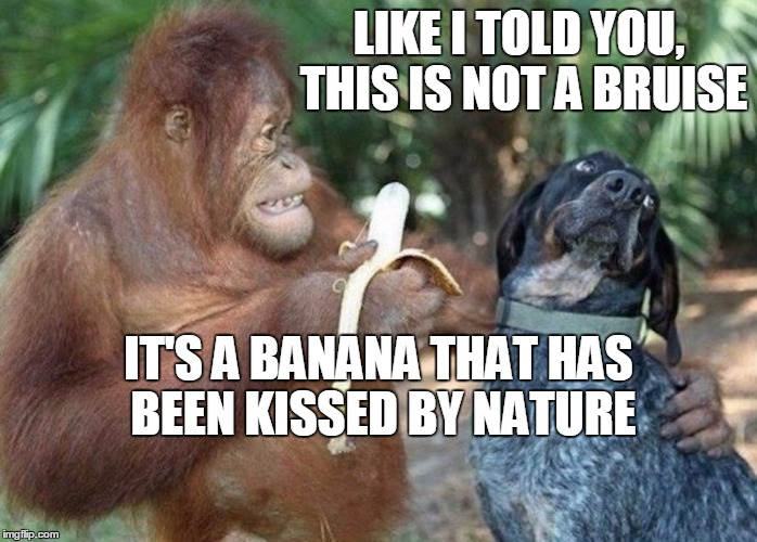 LIKE I TOLD YOU, THIS IS NOT A BRUISE IT'S A BANANA THAT HAS BEEN KISSED BY NATURE | image tagged in banana | made w/ Imgflip meme maker
