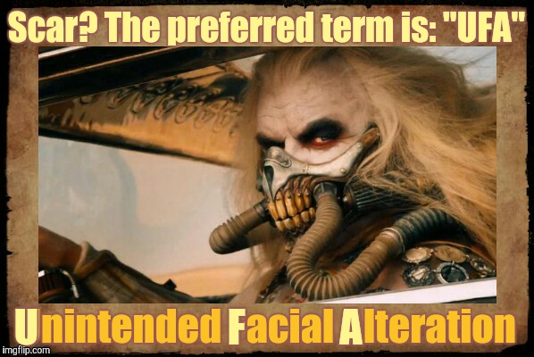 "Immortan Joe shall say,,, | Scar? The preferred term is: ""UFA"" Unintended Facial Alteration U                        F            A 