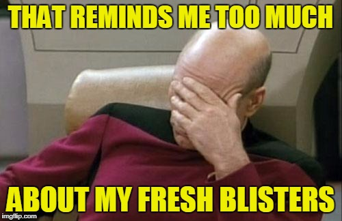 Captain Picard Facepalm Meme | THAT REMINDS ME TOO MUCH ABOUT MY FRESH BLISTERS | image tagged in memes,captain picard facepalm | made w/ Imgflip meme maker