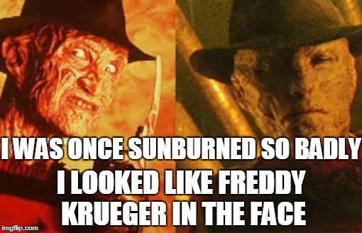 Don't fall asleep outside during the Summer without a hat and sunscreen.  | I LOOKED LIKE FREDDY KRUEGER IN THE FACE I WAS ONCE SUNBURNED SO BADLY | image tagged in freddy krueger face,freddy krueger,sunburn,memes | made w/ Imgflip meme maker