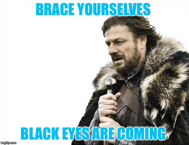 Brace Yourselves X is Coming Meme | BRACE YOURSELVES BLACK EYES ARE COMING | image tagged in memes,brace yourselves x is coming | made w/ Imgflip meme maker