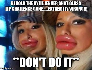 Duck Face Chicks Meme | BEHOLD THE KYLIE JENNER SHOT GLASS LIP CHALLENGE GONE......EXTREMELY WRONG!!! **DON'T DO IT** | image tagged in memes,duck face chicks | made w/ Imgflip meme maker