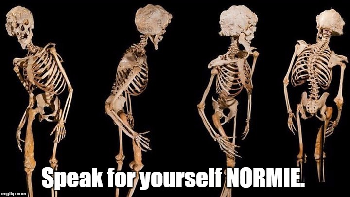 Speak for yourself NORMIE. | made w/ Imgflip meme maker
