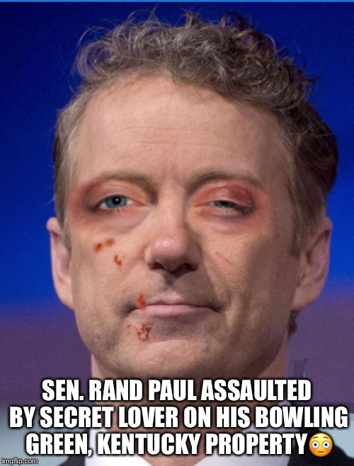 Paul's Secret Lovers Quarrel | SEN. RAND PAUL ASSAULTED BY SECRET LOVER ON HIS BOWLING GREEN, KENTUCKY PROPERTY | image tagged in rand paul,lovers quarrel | made w/ Imgflip meme maker