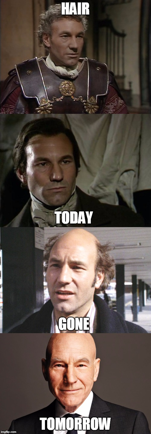 Hair today, gone tomorrow | HAIR TOMORROW TODAY GONE | image tagged in baldness,patrick stewart,i claudius | made w/ Imgflip meme maker
