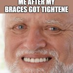Hide the Pain Harold | ME AFTER MY BRACES GOT TIGHTENE | image tagged in hide the pain harold,i'm 15 so don't try it,who reads these | made w/ Imgflip meme maker