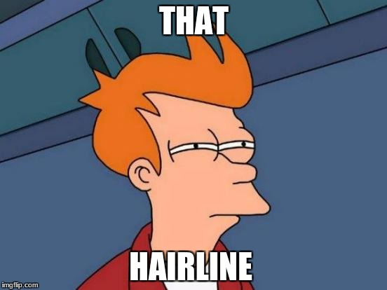 Futurama Fry Meme | THAT HAIRLINE | image tagged in memes,futurama fry | made w/ Imgflip meme maker