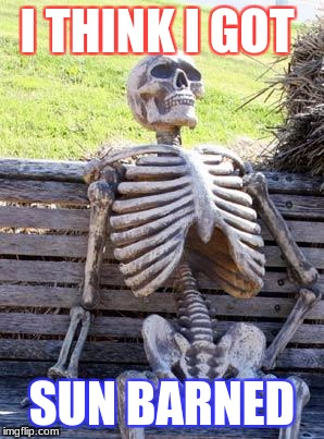 Waiting Skeleton Meme | I THINK I GOT SUN BARNED | image tagged in memes,waiting skeleton | made w/ Imgflip meme maker