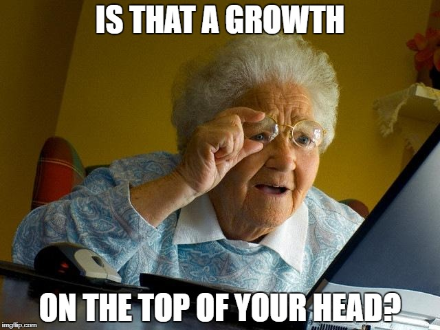 Grandma Finds The Internet Meme | IS THAT A GROWTH ON THE TOP OF YOUR HEAD? | image tagged in memes,grandma finds the internet | made w/ Imgflip meme maker