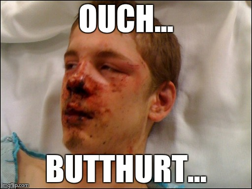 Ouch... butthurt | OUCH... BUTTHURT... | image tagged in beat up guy | made w/ Imgflip meme maker