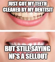 JUST GOT MY TEETH CLEANED BY MY DENTISIT BUT STILL SAYING NF'S A SELLOUT | image tagged in real | made w/ Imgflip meme maker