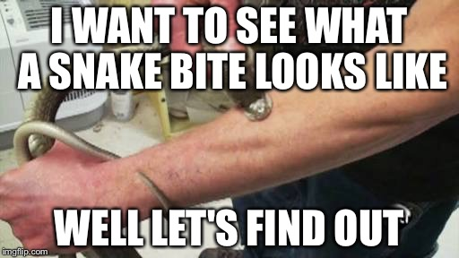 Snake bite | I WANT TO SEE WHAT A SNAKE BITE LOOKS LIKE WELL LET'S FIND OUT | image tagged in snake bite | made w/ Imgflip meme maker