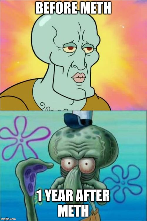 Squidward | BEFORE METH 1 YEAR AFTER METH | image tagged in memes,squidward | made w/ Imgflip meme maker