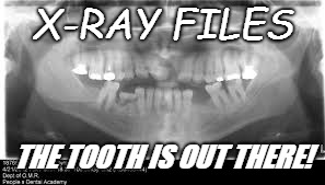 X-Ray Files |  X-RAY FILES; THE TOOTH IS OUT THERE! | image tagged in x-files,dental x-rays,teeth,missing,tooth,tv | made w/ Imgflip meme maker