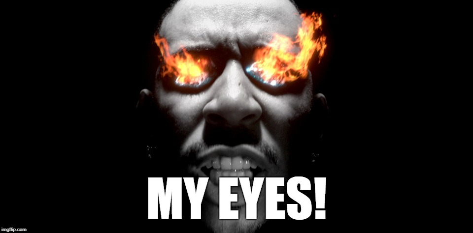 eyes burning | MY EYES! | image tagged in eyes burning | made w/ Imgflip meme maker