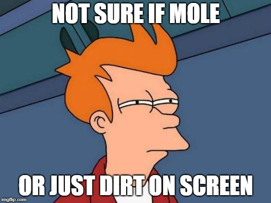 Futurama Fry | NOT SURE IF MOLE OR JUST DIRT ON SCREEN | image tagged in memes,futurama fry | made w/ Imgflip meme maker