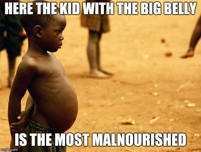 HERE THE KID WITH THE BIG BELLY IS THE MOST MALNOURISHED | made w/ Imgflip meme maker