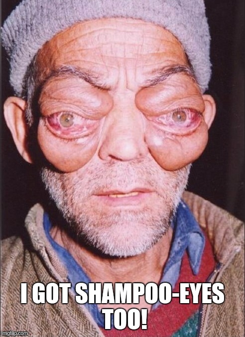 I GOT SHAMPOO-EYES TOO! | made w/ Imgflip meme maker