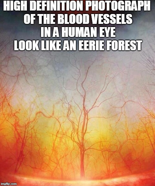 High Definition Photography  | HIGH DEFINITION PHOTOGRAPH OF THE BLOOD VESSELS IN A HUMAN EYE LOOK LIKE AN EERIE FOREST | image tagged in high definition,hd,photography,eyeball,forest,memes | made w/ Imgflip meme maker