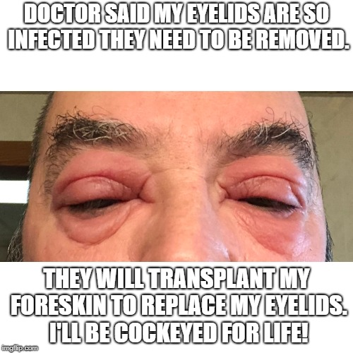 Eyelids | DOCTOR SAID MY EYELIDS ARE SO INFECTED THEY NEED TO BE REMOVED. THEY WILL TRANSPLANT MY FORESKIN TO REPLACE MY EYELIDS. I'LL BE COCKEYED FOR | image tagged in eyelids,foreskin,doctor | made w/ Imgflip meme maker