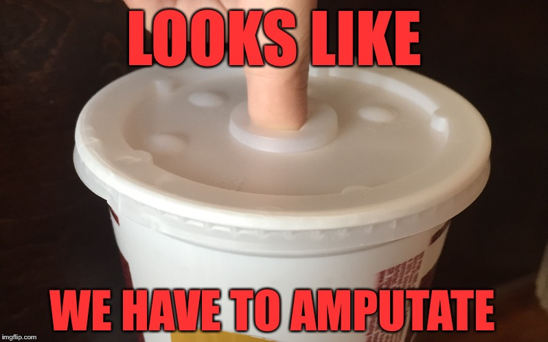 LOOKS LIKE WE HAVE TO AMPUTATE | image tagged in amputee,finger,stuck,help,oh no,relatable | made w/ Imgflip meme maker
