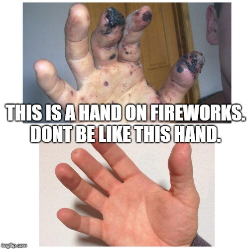 THIS IS A HAND ON FIREWORKS. DONT BE LIKE THIS HAND. | image tagged in fireworks,4th of july | made w/ Imgflip meme maker