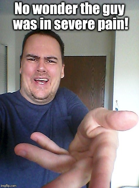 wow! | No wonder the guy was in severe pain! | image tagged in wow | made w/ Imgflip meme maker