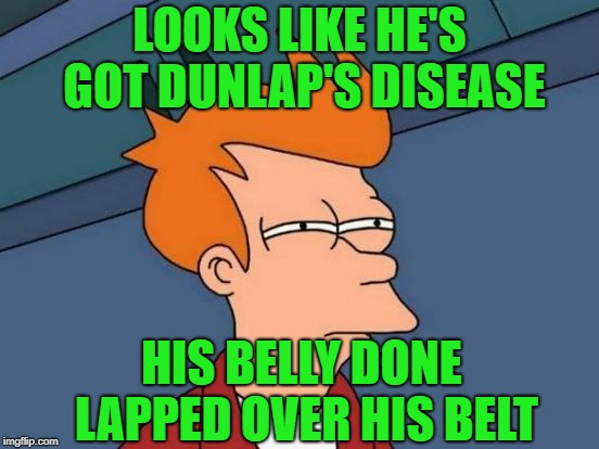 Futurama Fry Meme | LOOKS LIKE HE'S GOT DUNLAP'S DISEASE HIS BELLY DONE LAPPED OVER HIS BELT | image tagged in memes,futurama fry | made w/ Imgflip meme maker