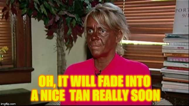 Sunburn | OH, IT WILL FADE INTO A NICE  TAN REALLY SOON | image tagged in sunburn | made w/ Imgflip meme maker
