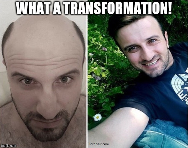 DAYUM | WHAT A TRANSFORMATION! | image tagged in wig,hair loss | made w/ Imgflip meme maker