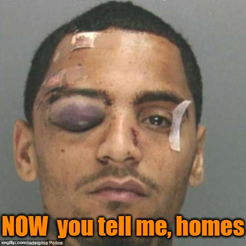 Black Eye | NOW  you tell me, homes | image tagged in black eye | made w/ Imgflip meme maker