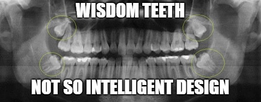 WISDOM TEETH NOT SO INTELLIGENT DESIGN | image tagged in intelligent design,wisdom teeth | made w/ Imgflip meme maker
