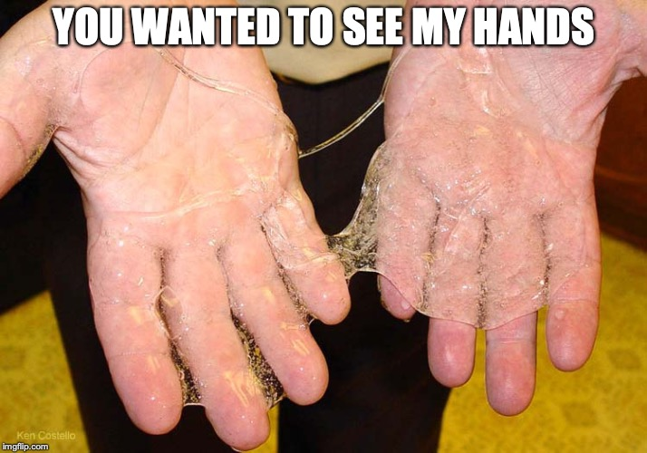 Sticky hands | YOU WANTED TO SEE MY HANDS | image tagged in sticky hands | made w/ Imgflip meme maker