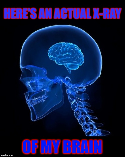 I may not be smart, but... (I forgot where was going with this.) | HERE'S AN ACTUAL X-RAY OF MY BRAIN | image tagged in vince vance,inferior intelligence,x-ray of human skull,brains,i like the colors,x-ray | made w/ Imgflip meme maker