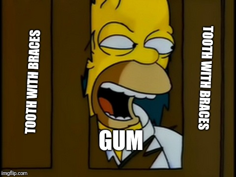 Heeres Homer | TOOTH WITH BRACES TOOTH WITH BRACES GUM | image tagged in heeres homer | made w/ Imgflip meme maker