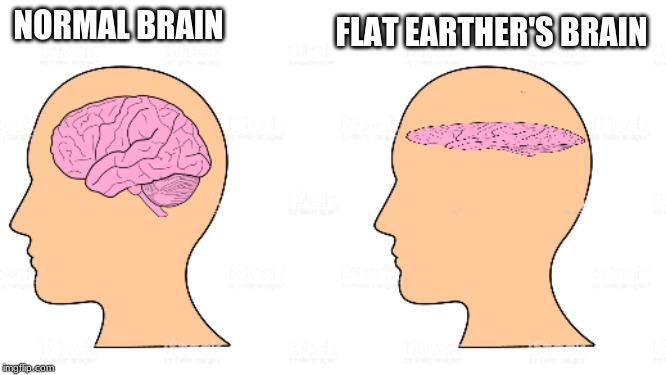 psychology 101 | NORMAL BRAIN FLAT EARTHER'S BRAIN | image tagged in flat earth | made w/ Imgflip meme maker